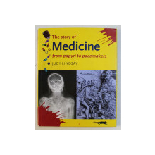 THE STORY OF MEDICINE FROM PAPYRI TO PACEMAKERS by JUDY LINDSAY , 2003